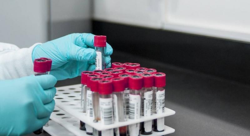 Роспотребнадзор: Более 1% населения 13 регионов РФ заражены ВИЧ